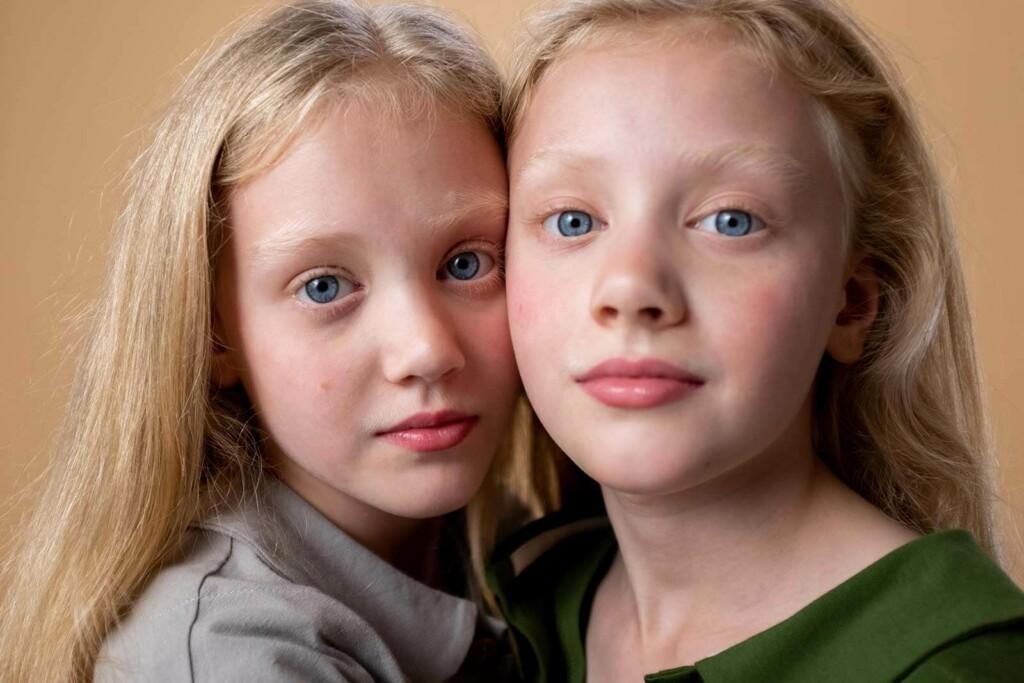 DNA Analyse bei Zwillingen