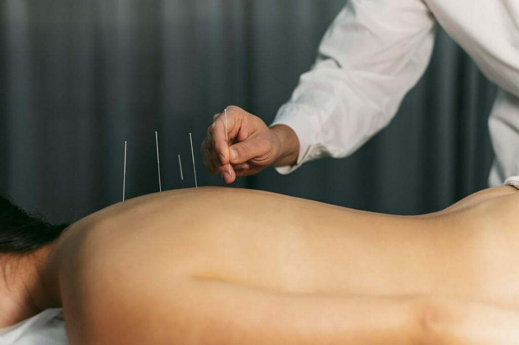 Arzt setzt Nadeln während Akkupunktur Therapie