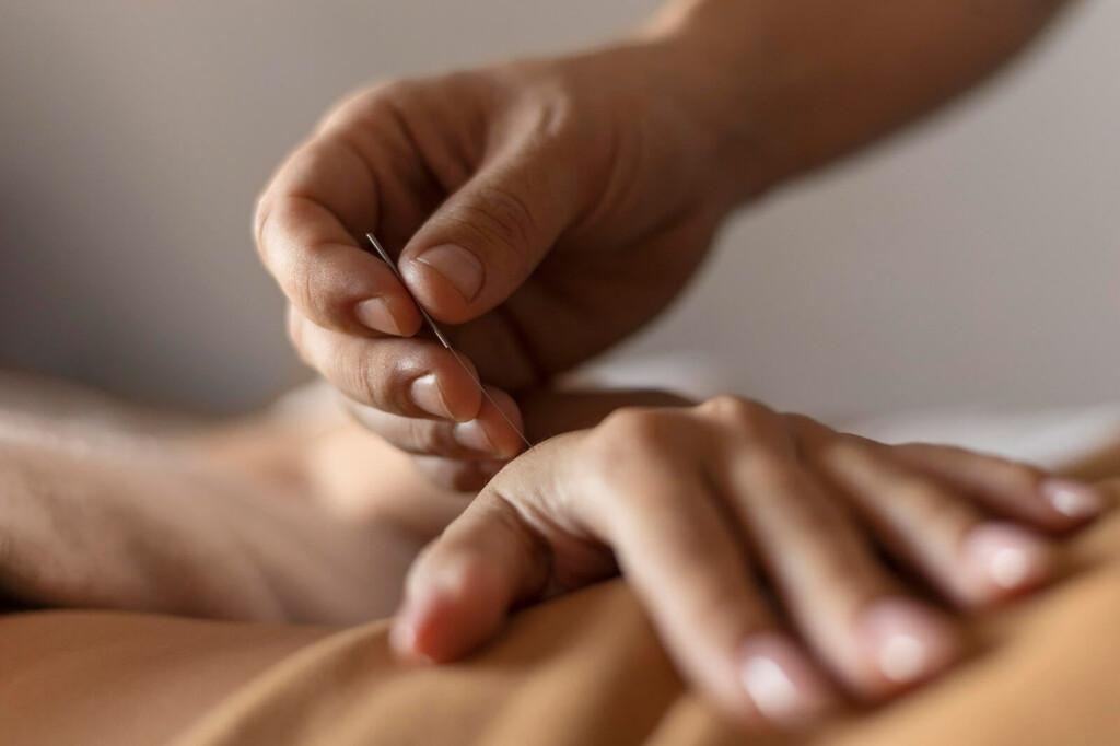 Akkupunktur Nadel wird in Hand gestochen
