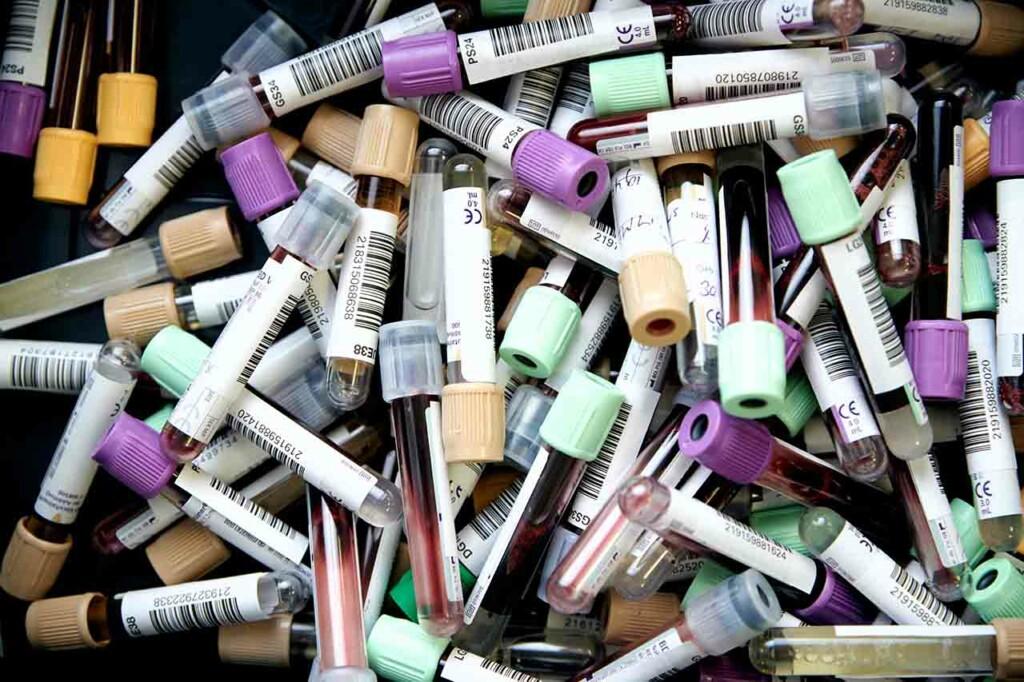 Blutspende Ampullen für Untersuchung